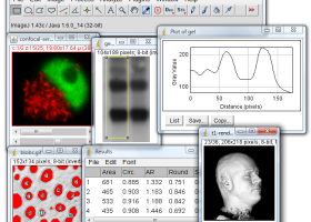 ImageJ for Windows 7 - A public domain Java image processing program